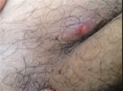 zits penis jpg 555x412