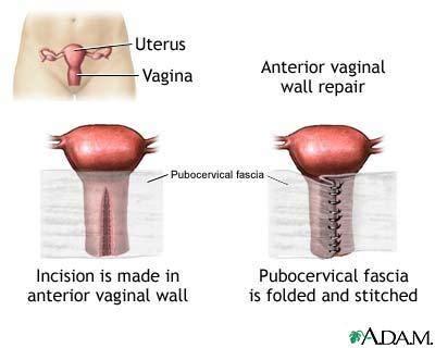 para vaginal repair jpg 400x320