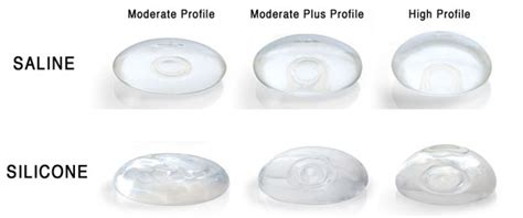 cohesive gel silicone breast implant jpg 600x251