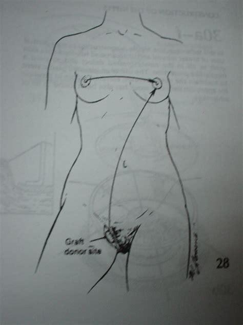 breast implant saline supply jpg 480x640