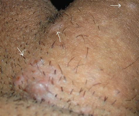 Causes of skin tags in the vagina jpg 990x829